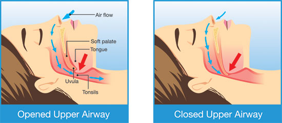 Diagram showing opened and closed upper airway whilst sleeping